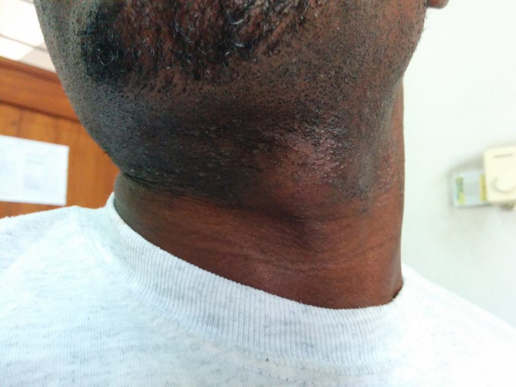 Patient with thyroglossal duct cyst, Amana Hospital