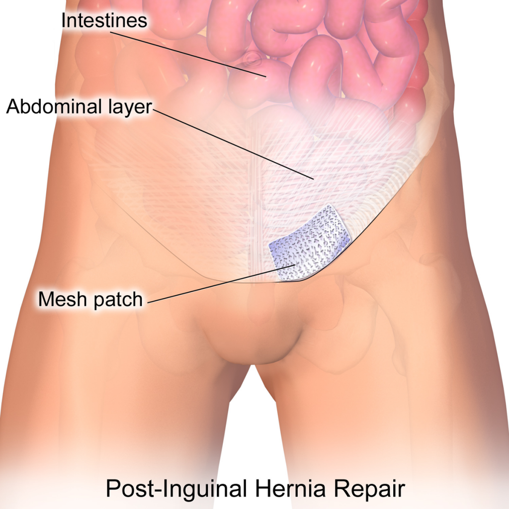 Repairing an Inguinal Hernia with Mesh